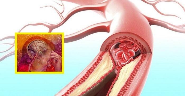 Медики рассказали, какой овощ поможет укрепить сосуды и справиться с гипертонией